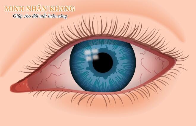 Khô mắt sau phẫu thuật lasik với biểu hiện đỏ, sưng, đau